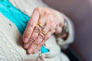 Elderly Alzheimer's Hands Contracture